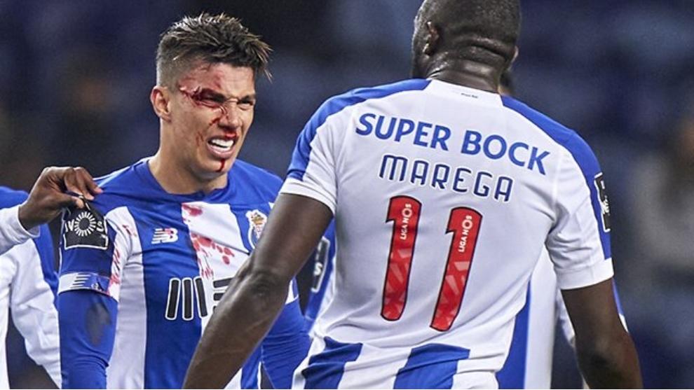 Matheus Uribe sangra tras el golpe de Alfonso que le dejó la ceja...