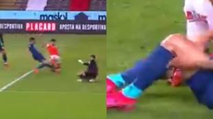 Imágenes de la lesión de Matheus Uribe.