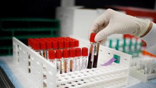 Menor riesgo de infección y de gravedad con la sangre del grupo O.