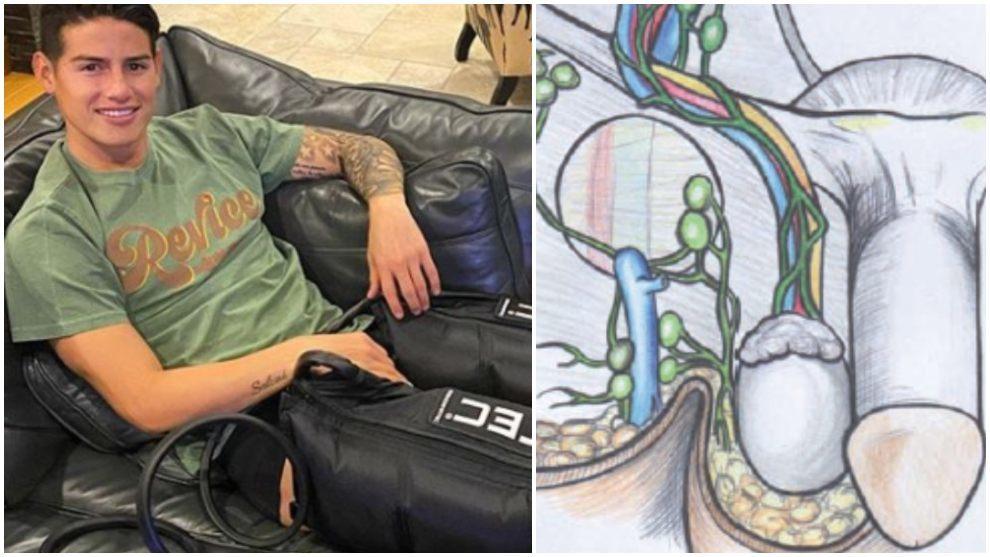 Collage de James Rodríguez y una ilustración del sistema venoso del...
